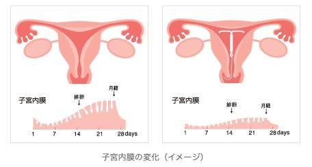 ミレーナによる子宮内膜の変化